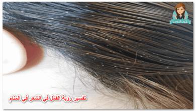Photo of تفسير حلم القمل في الشعر