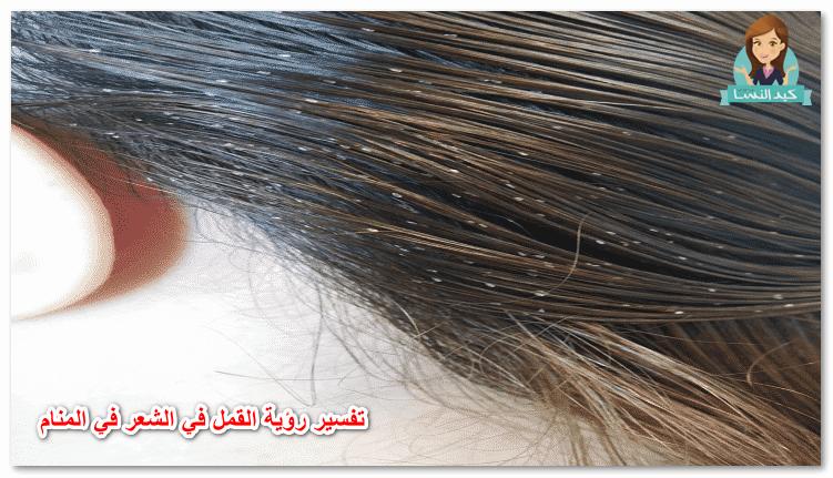 حلم القمل في الشعر