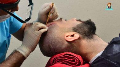 Photo of ما هي التقنيات المستخدمة في زراعة الشعر في تركيا؟