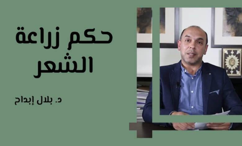 Photo of للنساء والرجال ما هو الحكم الشرعي لزرع الشعر؟