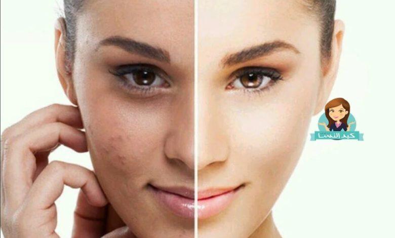 10 وصفات طبيعية لتبييض الوجه وتفتيح البشرة