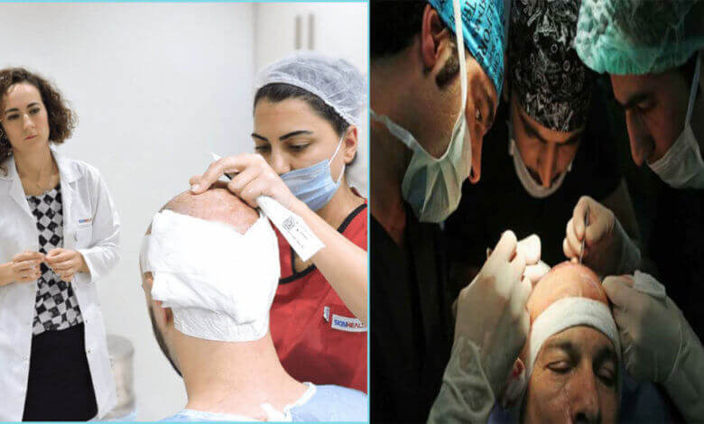 التقنيات المستخدمة في زراعة الشعر في تركيا